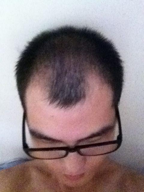 【成长记录】头发恢复历程