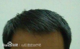 [恢复情况]戒除5个月(头发,精气神)恢复情况和感想