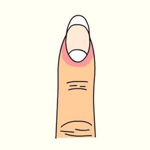指甲反映健康:什么样的月牙才是最好的?